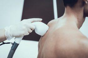 רשלנות בטיפול להסרת שיער - רשלנות רפואית ניתוחי לייזר